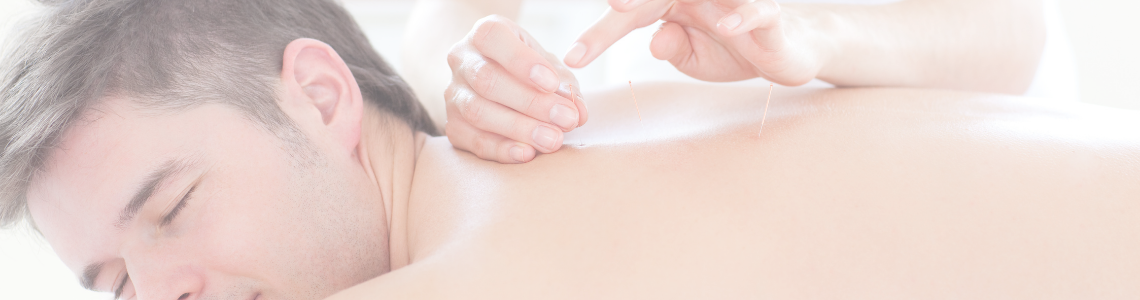 male patient receiving acupuncture on his back